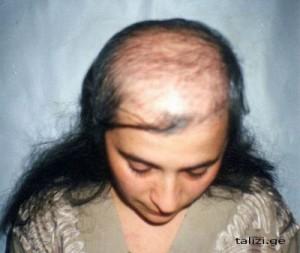 После лактации выпадают волосы что делать