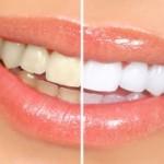 ультразвуковая-чистка-зубов-300x180