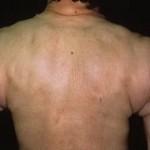 sklerodermija