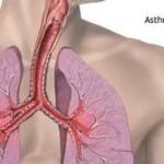Бронхиальная-астма-300x272