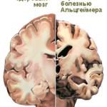 Признаки-болезни-Альцгеймера