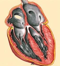 gipertroficheskaya-kardiomiopatiya