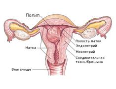 polip_endometrija_lechenije
